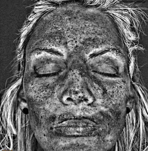 تصویر هولناک از آسیبهای نامرئی حمام آفتاب با اسکن پیشگامانه محققان