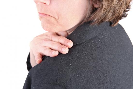 ده راه برای درمان شوره سر
