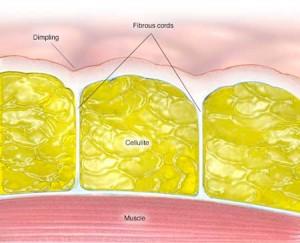 آناتومی سلولیت