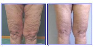 درمان سلولیت یا پوست پرتقالی با مزوتراپی