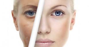 میکرونیدلینگ چیست ؟ جوانسازی پوست با میکرو نیدلینگ